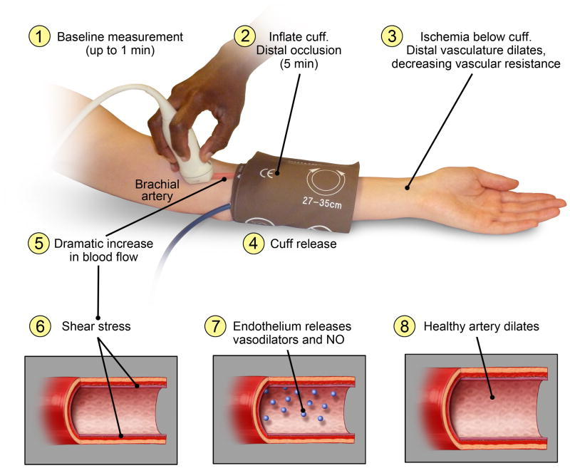 FMD - Description of flow mediate dilation technique for in vivo assessment of conduit artery endothelium-mediated vasodilation