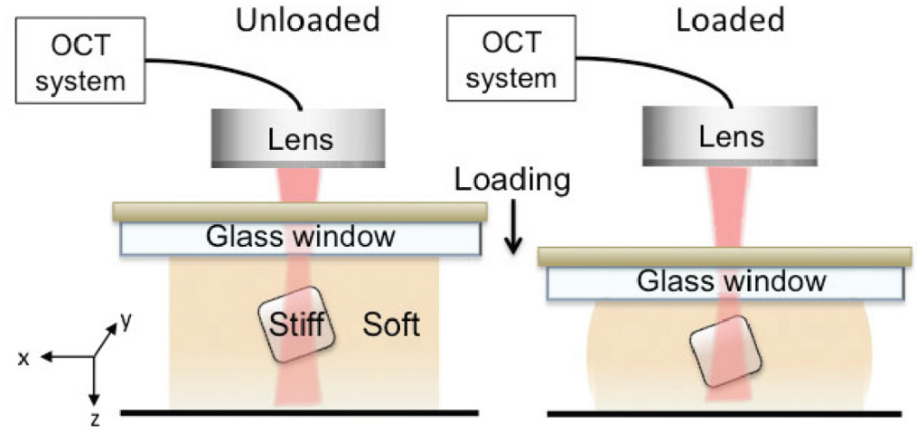 Using OCT to measure stiffness in breast tissue